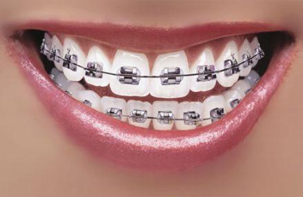 Reguli de igiena pentru cei care poarta aparat dentar