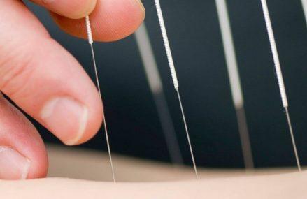 Informatii despre contact cabinet acupunctura Bucuresti