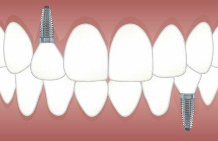 Care sunt etapele realizarii unui implant dentar?